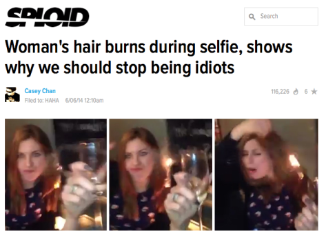 selfie-hair-burns-idiot